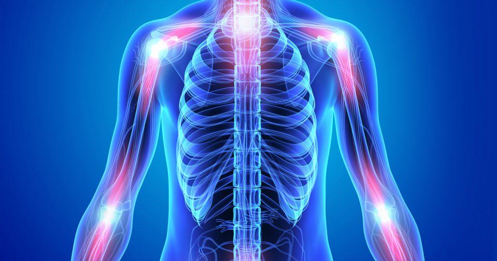 Gemi Bertran's Blog: Inflammation Part 2